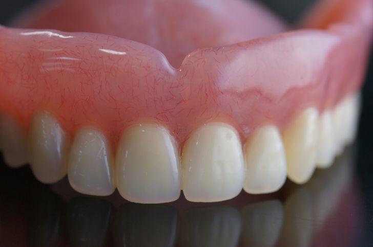 Cъёмные зубные протезы: виды, цены на съемное протезирование